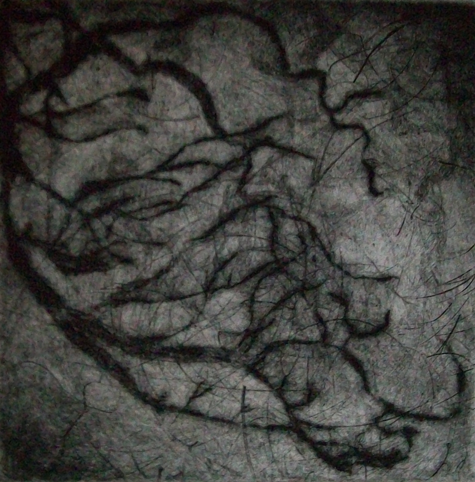 The Heart is a Forest (Angiogram)