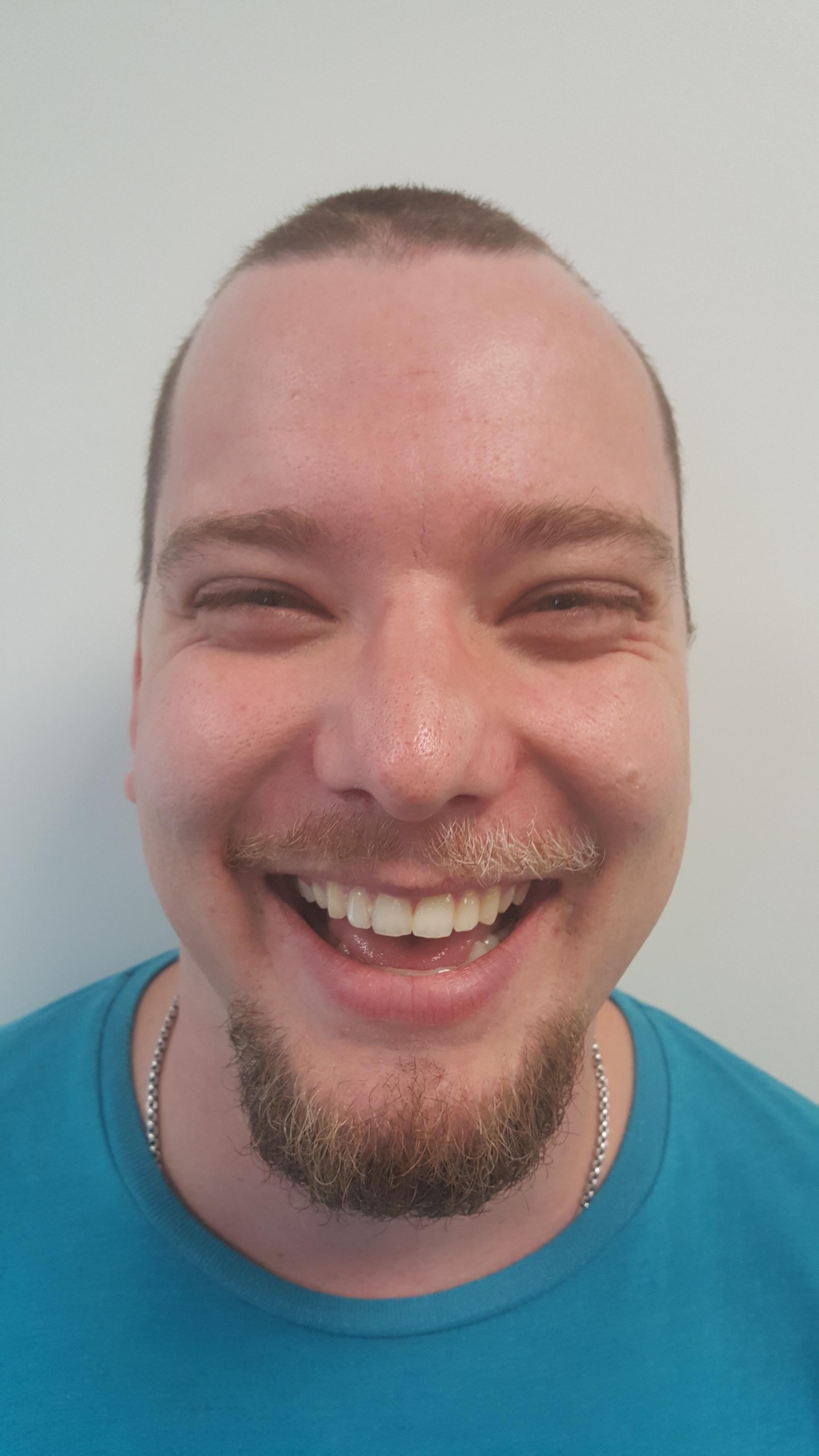 Triquestra Movember