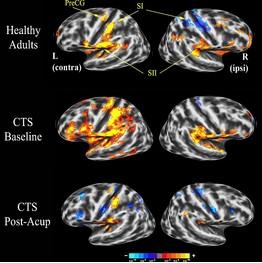 brain scans in WSJ