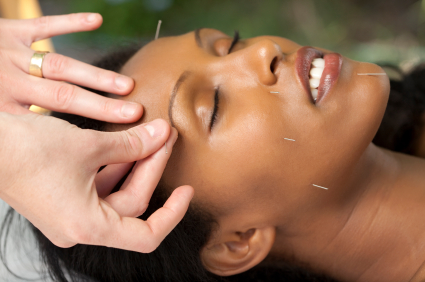 facial-acupuncture-in-clinic