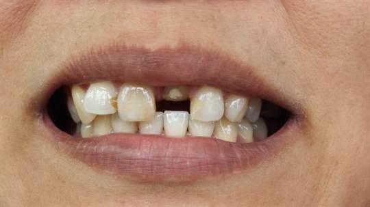 4. Du drömmer om dina tänder.  Förklaring: Att du tappar dem kan betyda att du inte känner dig attraktiv. Det kan också betyda att du skäms över något.