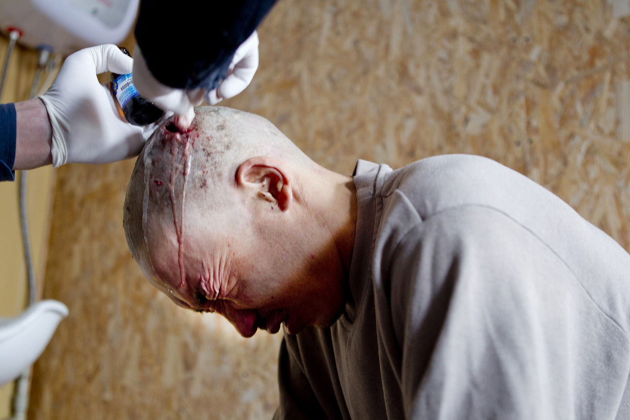 Iman Jeenbaev has a headwound cleaned by a volunteer at Fountain of Light, an NGO that provides help to homeless people in Bishkek.He was beaten with a crow bar after a drunken night on thestreets.