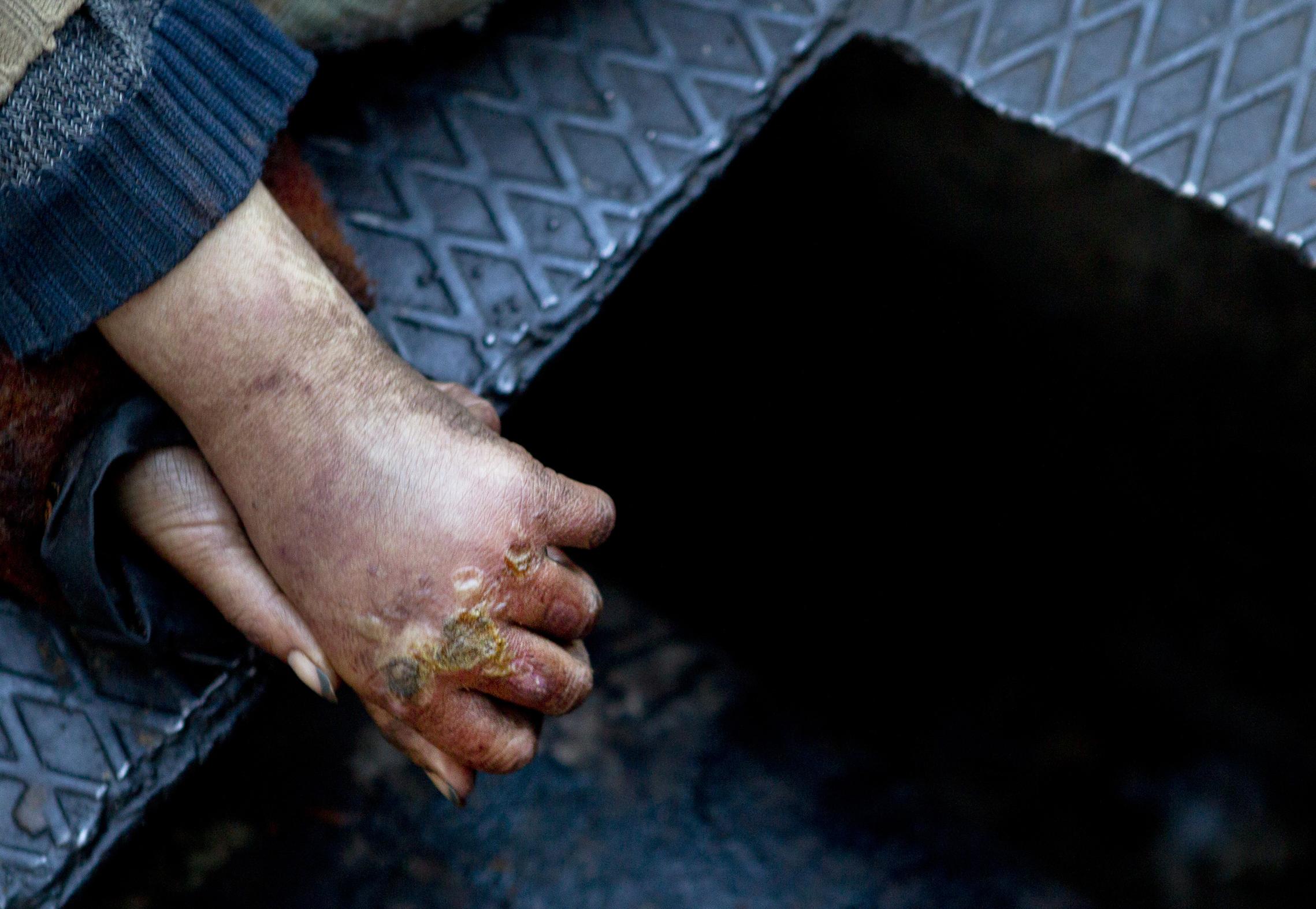 A homeless woman's hands.