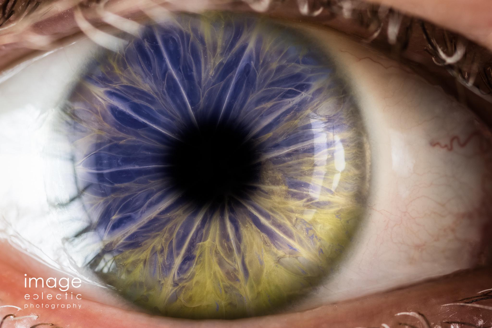 Heterochromia Cinis