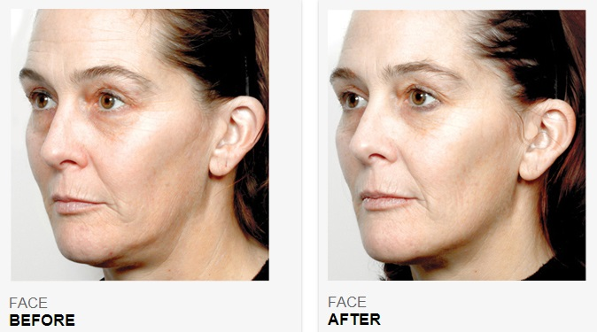 NuFACE-Before-After-4.jpg