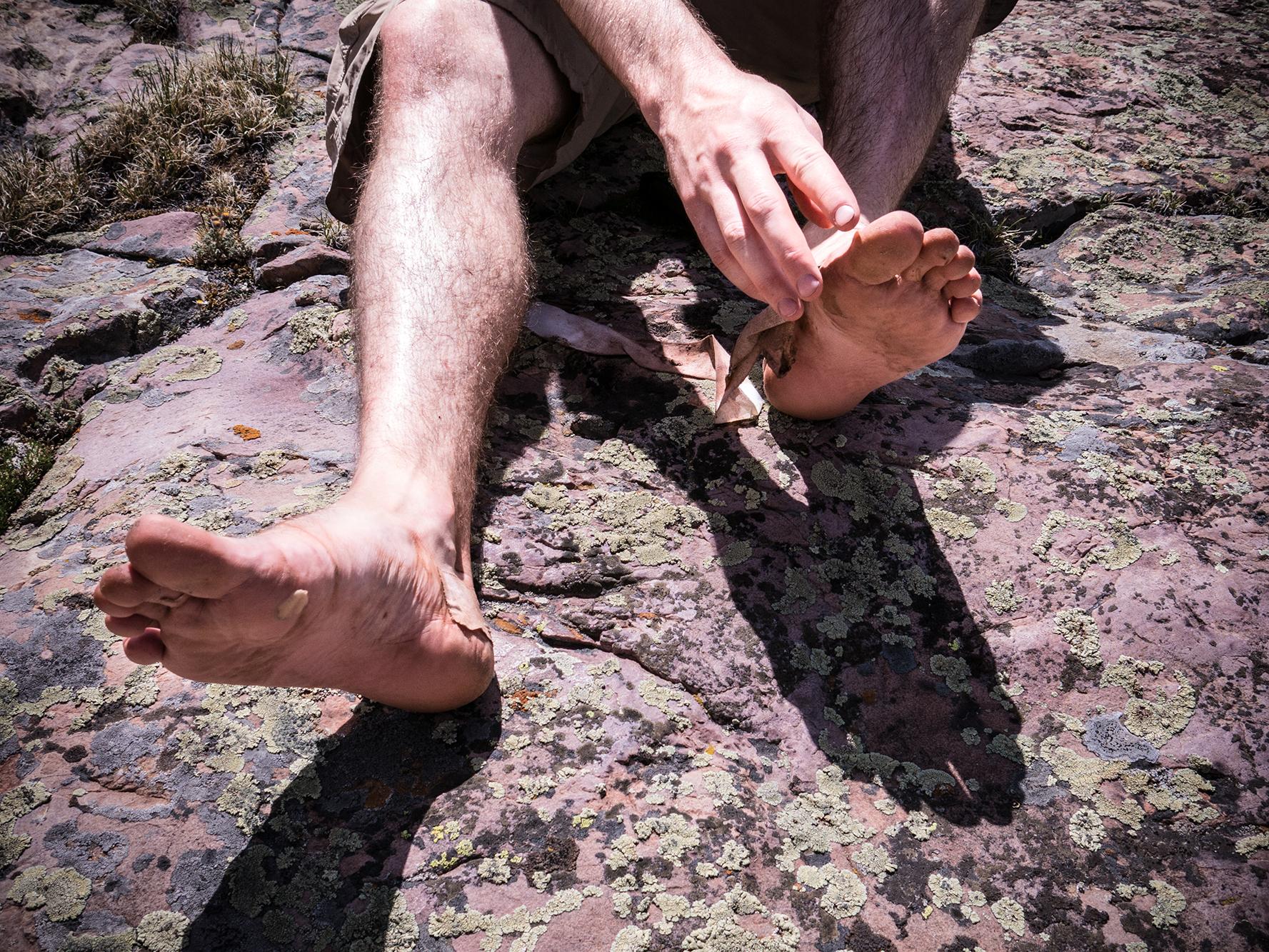 Spencer's wrecked feet.