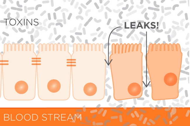 leaky-gut-infographic