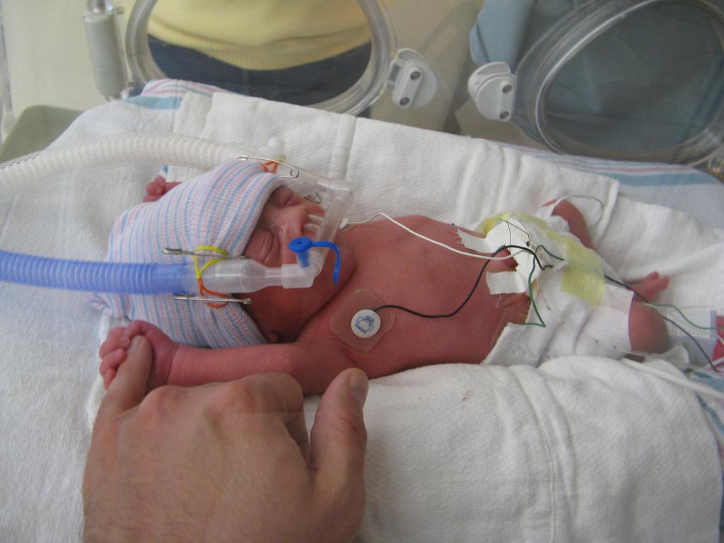 NICU preemie with nasal CPAP, arms raised