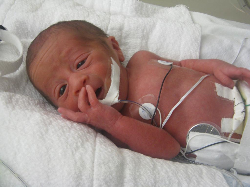 closeup premature baby smiling