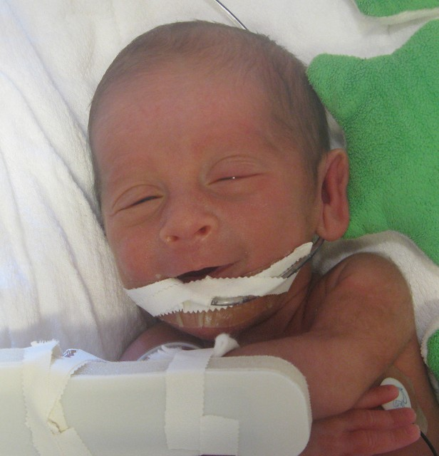 preemie with oral feeding tube smiling