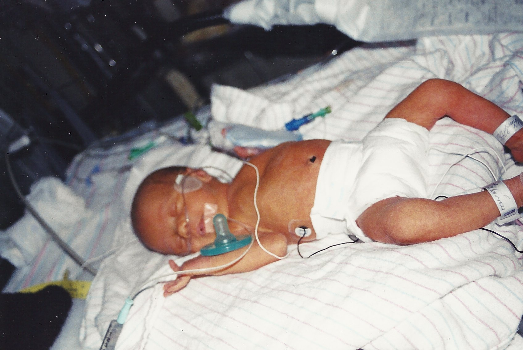 Preemie baby on radiant warmer with oxygen & pacifier