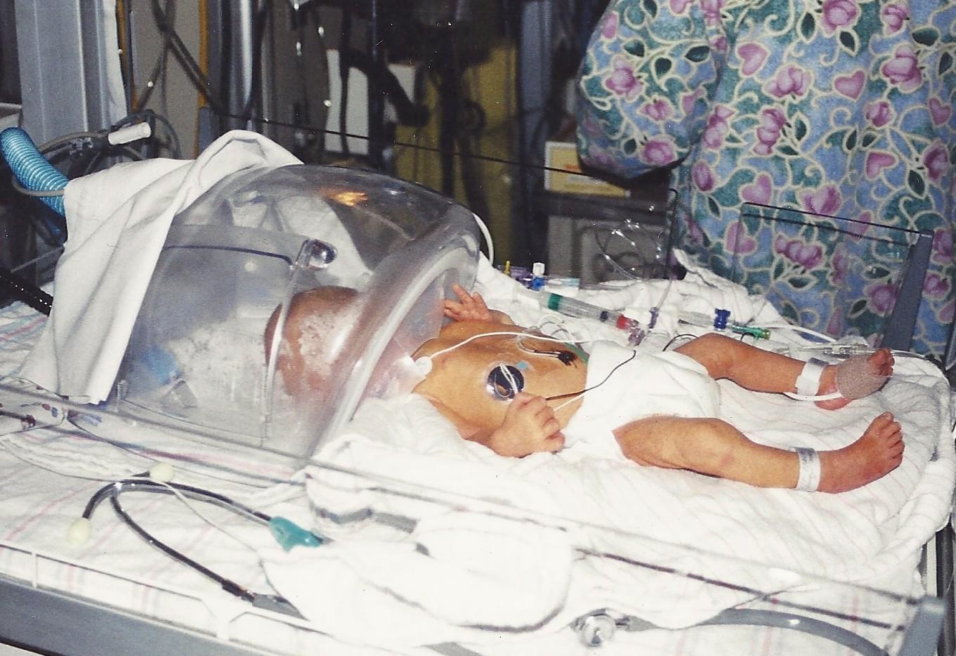 Preemie baby on radiant warmer in oxygen hood