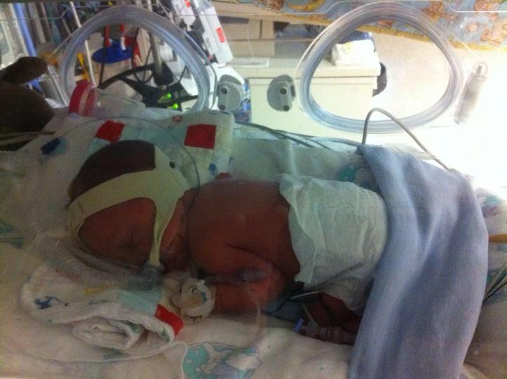 preemie in incubator with CPAP amd IV
