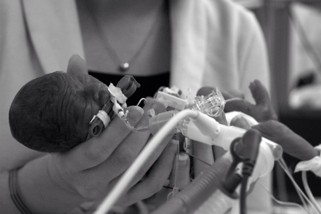 micropreemie intubated held by mother black and white