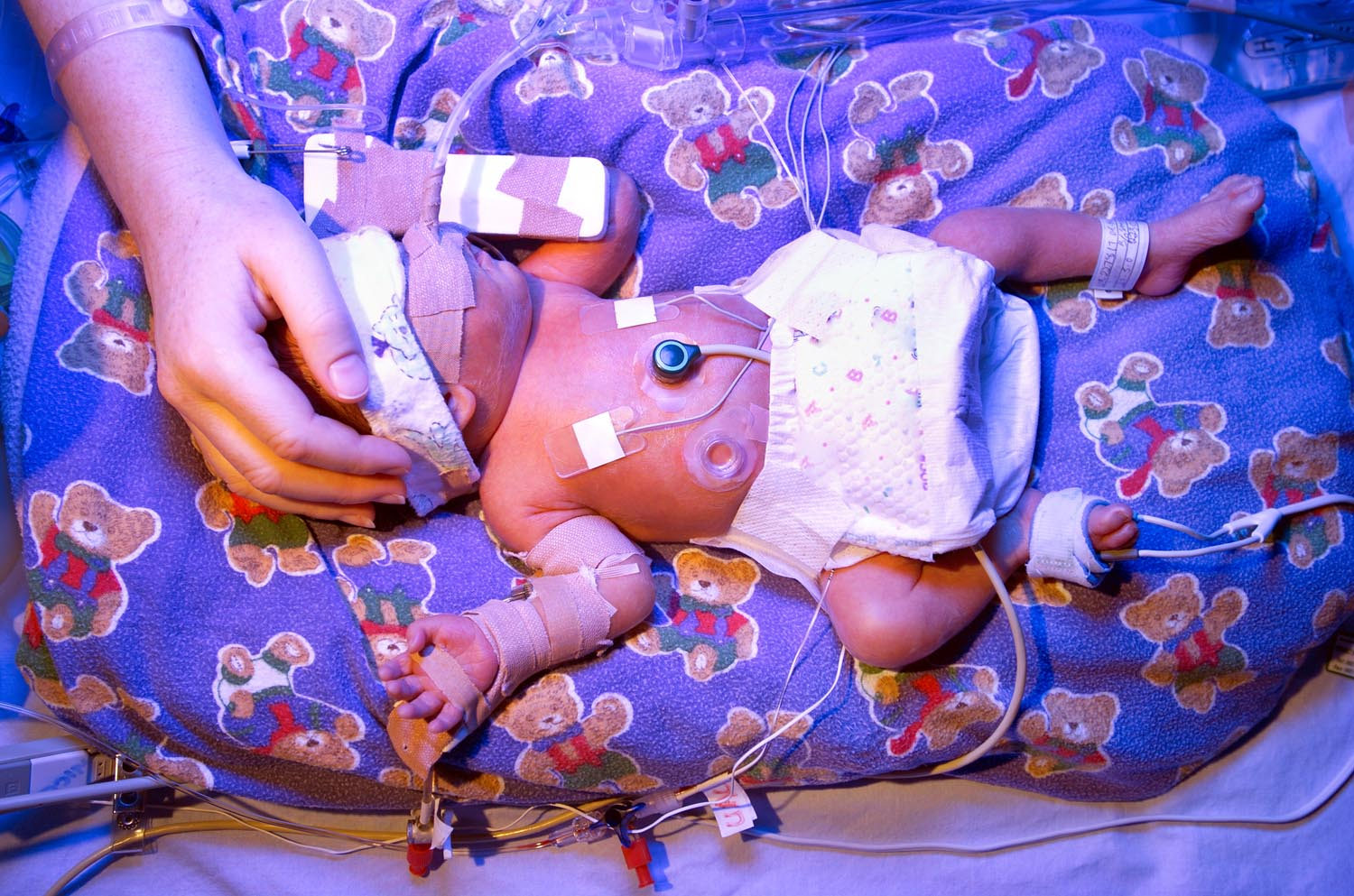 nicu micropreemie with IV phototherapy, mothers hand on head