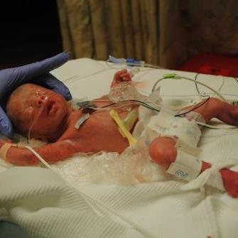 micropreemie jack after birth in NICU