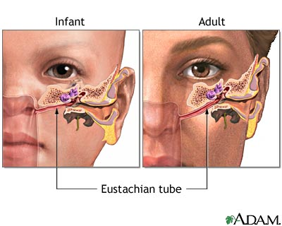 Eustachian tube in a child vs. an adult, you can see that the child has an almost horizontal Eustachian tube, while the adults is at a diagonal position, allowing for better drainage.