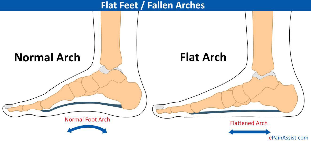 Flat-Feet.jpg