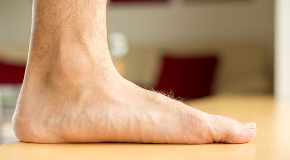 Bounce-podiatry-Flat-Feet-information.jpg