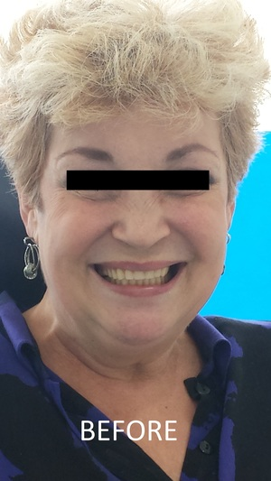 COMPLETE DENTURES ADELAIDE