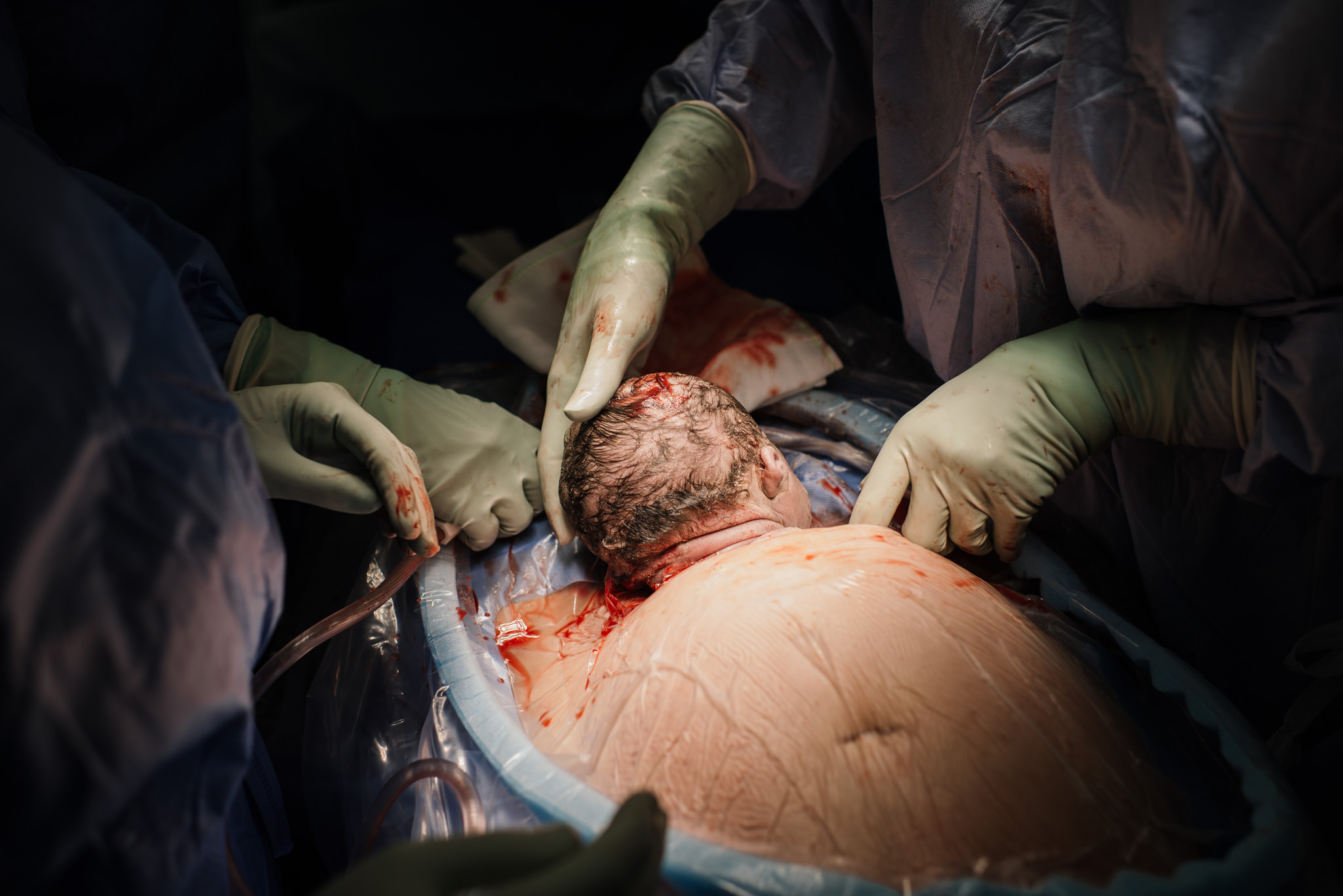 Aspen c-section-54.jpg