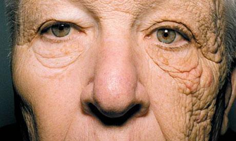 In this photo you can see how damaging the UV rays are.    In the U.S. the majority of skin cancer is on the left side    which has more exposure.