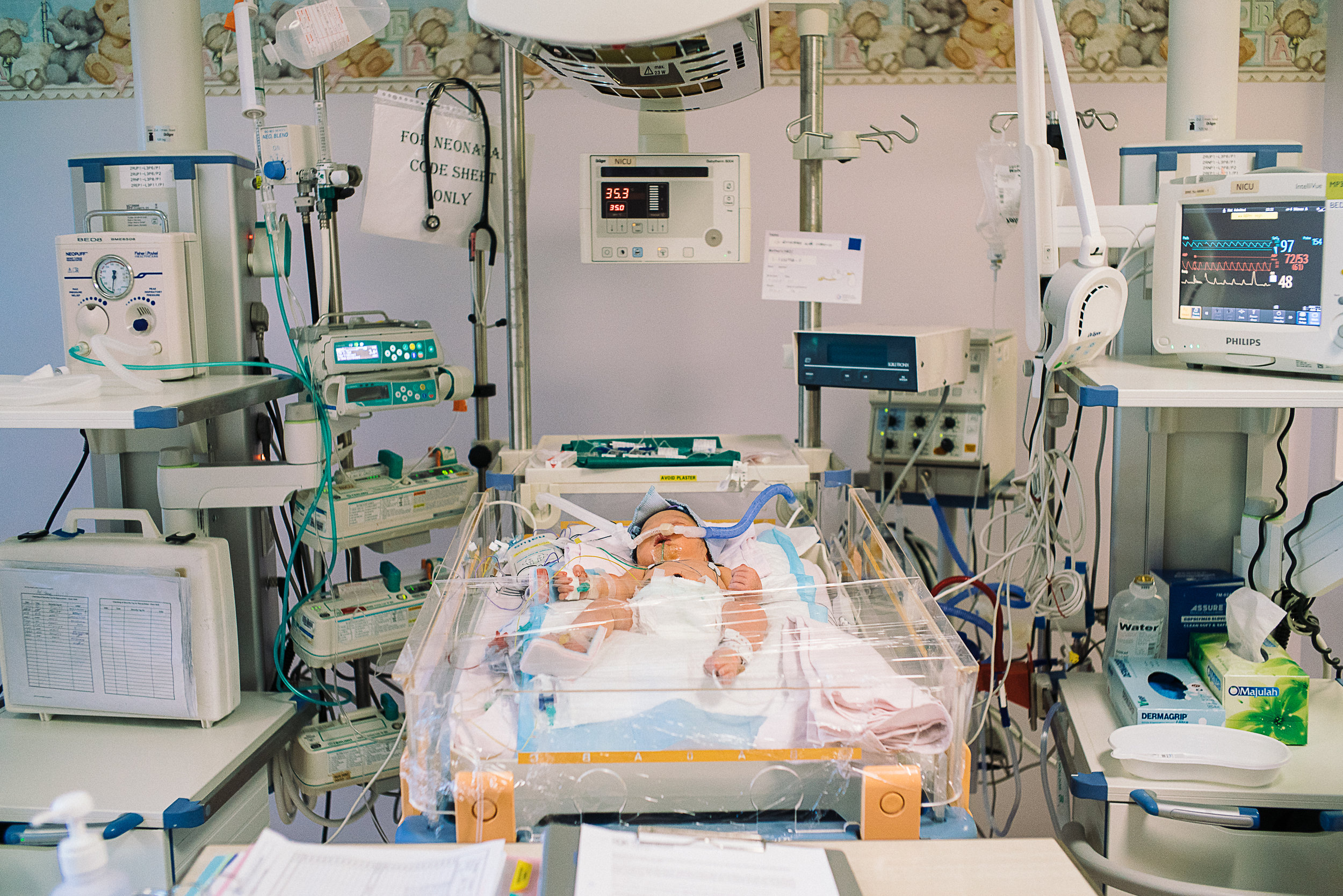 While Hana was warded in the Neonatal Intensive Care Unit (NICU), other machines were set-up to conduct tests to find out what was the cause of the problem.  She also had to be put on life support in the meantime.