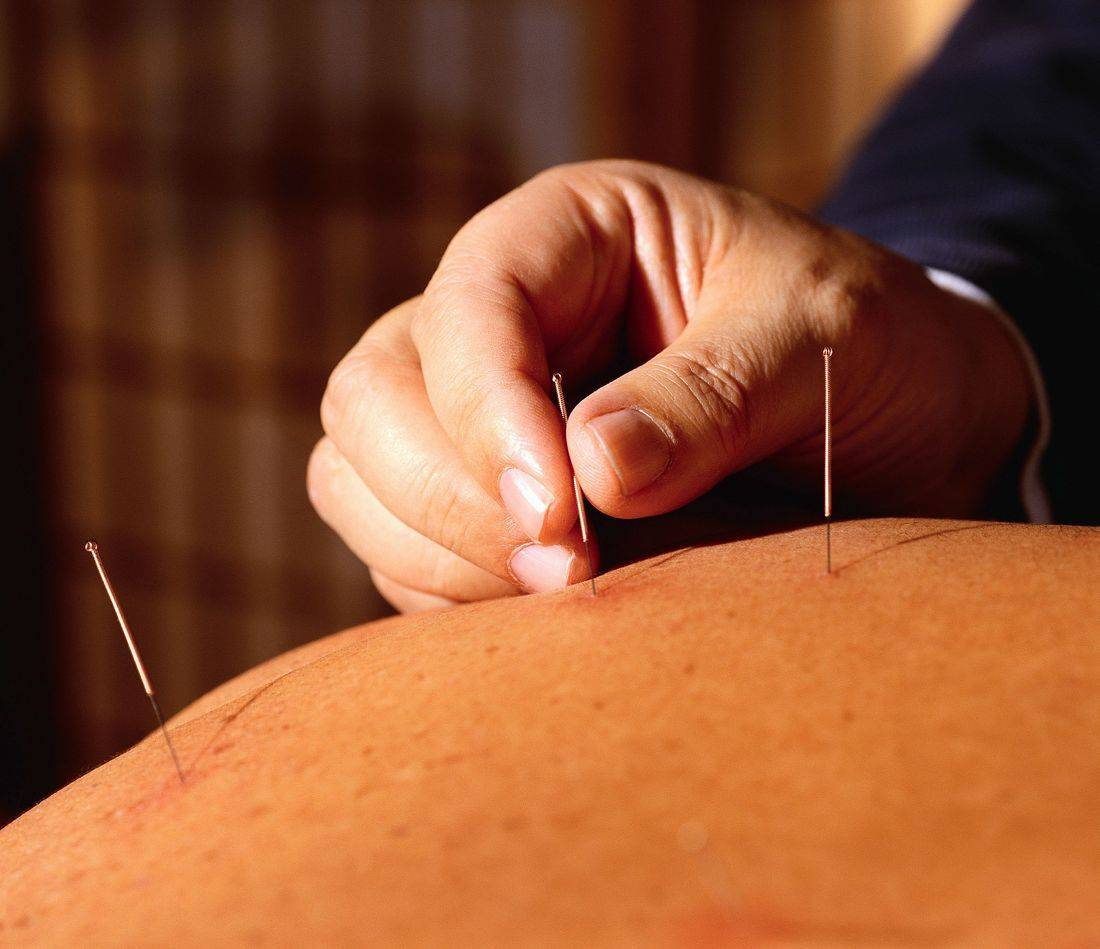 Dry Needling / Acupuncture   at Blueprint Fitness, Whetstone, Barnet N20.