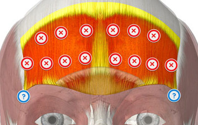 Botox Injection Points for Forehead Lines and Lateral Eyebrow lift