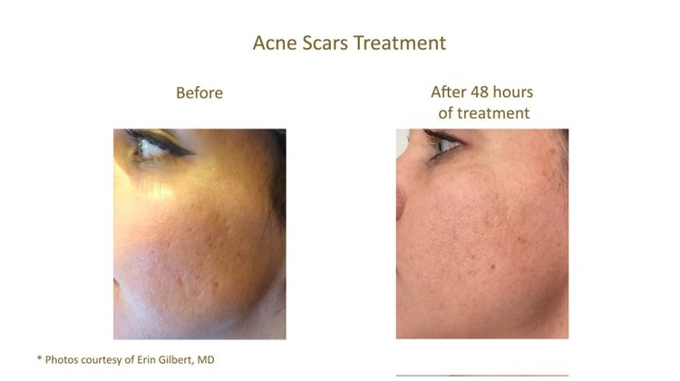 Acne Scaring