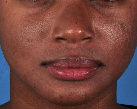 ZO-Severe-Acne-System-2-after.jpg