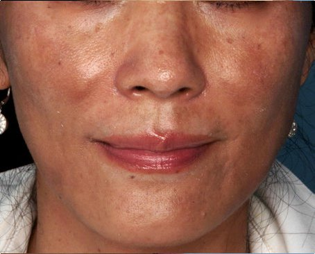 ZO-Non-Hydroquinone-Hyperpigmentation-System-3-before.jpg
