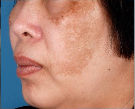 ZO-Non-Hydroquinone-Hyperpigmentation-System-1-before.jpg