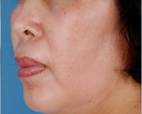 ZO-Non-Hydroquinone-Hyperpigmentation-System-1-after.jpg