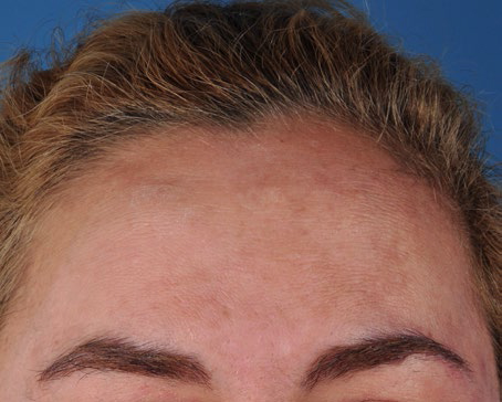 ZO-Multi-Therapy-Hydroquinone-System-2-after.jpg