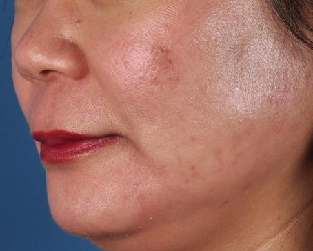 ZO-Severe-Acne-System-1-after.jpg
