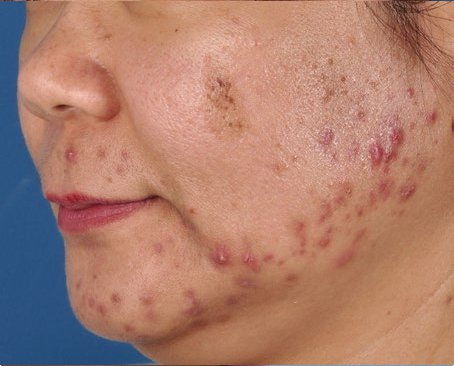ZO-Severe-Acne-System-1-before.jpg