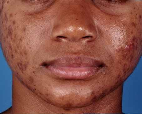 ZO-Severe-Acne-System-2-before.jpg
