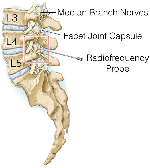- Radiofrequency ablation is a procedure in which radiofrequency waves are used to produce heat on specifically identified nerves. The nerves to be ablated are identified through injections of local anesthesia prior to the procedure (Facet Joint Injection or Medial Branch block). By generating heat around the nerve, the ability of the nerve to transmit pain signals to the brain is destroyed, thus ablating the nerve. The pain relief after radiofrequency can last from 6 months to 1 year.