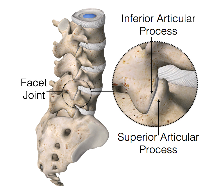 Facet Joint - The facet joints are the joints in your spine that allow your spine to bend and twist.They also keep the spine in alignment. Breakdown or degeneration of these joints can lead to neck pain or back pain. This condition is commonly referred to as Facet Joint Diseaseor Spondylosis. For treatment of facet joint disease we initially perform Facet Joint Injection or Medial Branch Block, followed by Radiofrequency Ablation.
