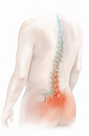 Spinal Cord Stimulator - Epic Pain Management