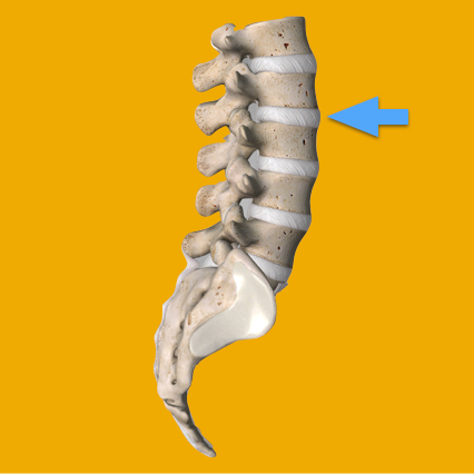 - It is a rubbery cushion (disc) between individual bones of the spine (vertebrae). A spinal disc is somewhat like a jelly donut with a soft center (nucleus pulposus) within a hard exterior (annulus fibrosus).