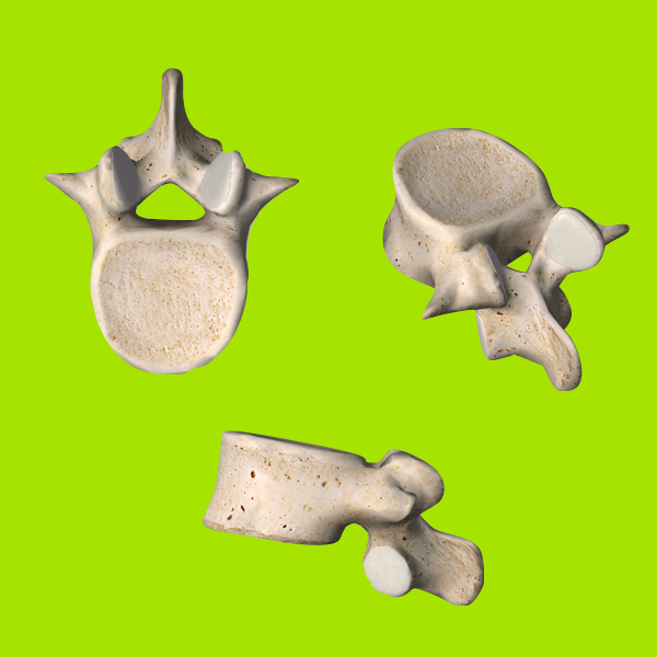 Vertebral Bodies - The vertebral bodies are the bony building blocks of spine. The bones are stacked on top of each other with a spinal disc between each vertebrae.The vertebral bodies act as a support column to hold up the spine.
