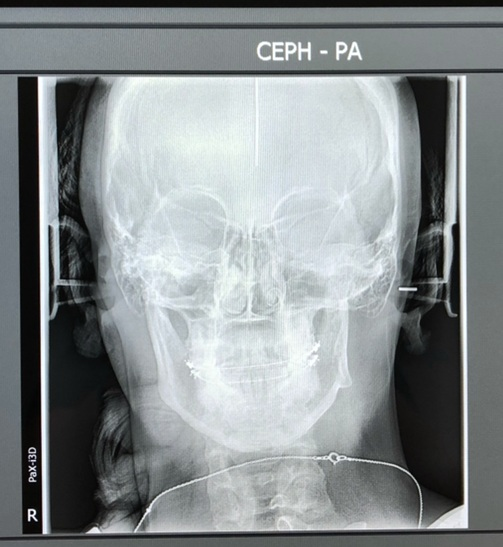 """My very first x-rays. You can see here how my left joint is shorter than the right & my entire jaw was """"canted� or tilted. This caused severe pain, difficultly chewing, neck issues, headaches, & lock-jaw. All TMJ symptoms,"""