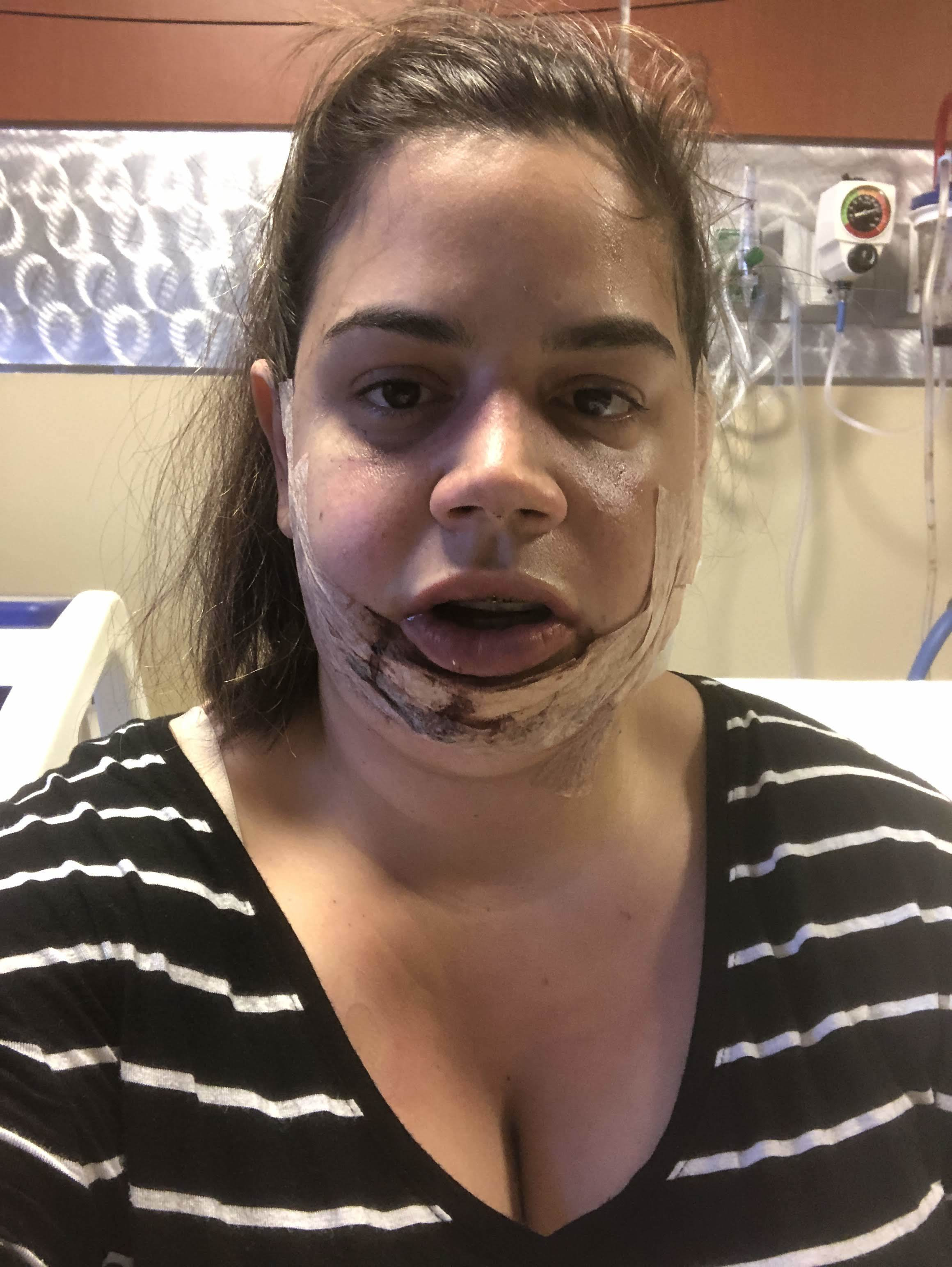 How I looked once the removed the ice pack. My face had so much glue on it.