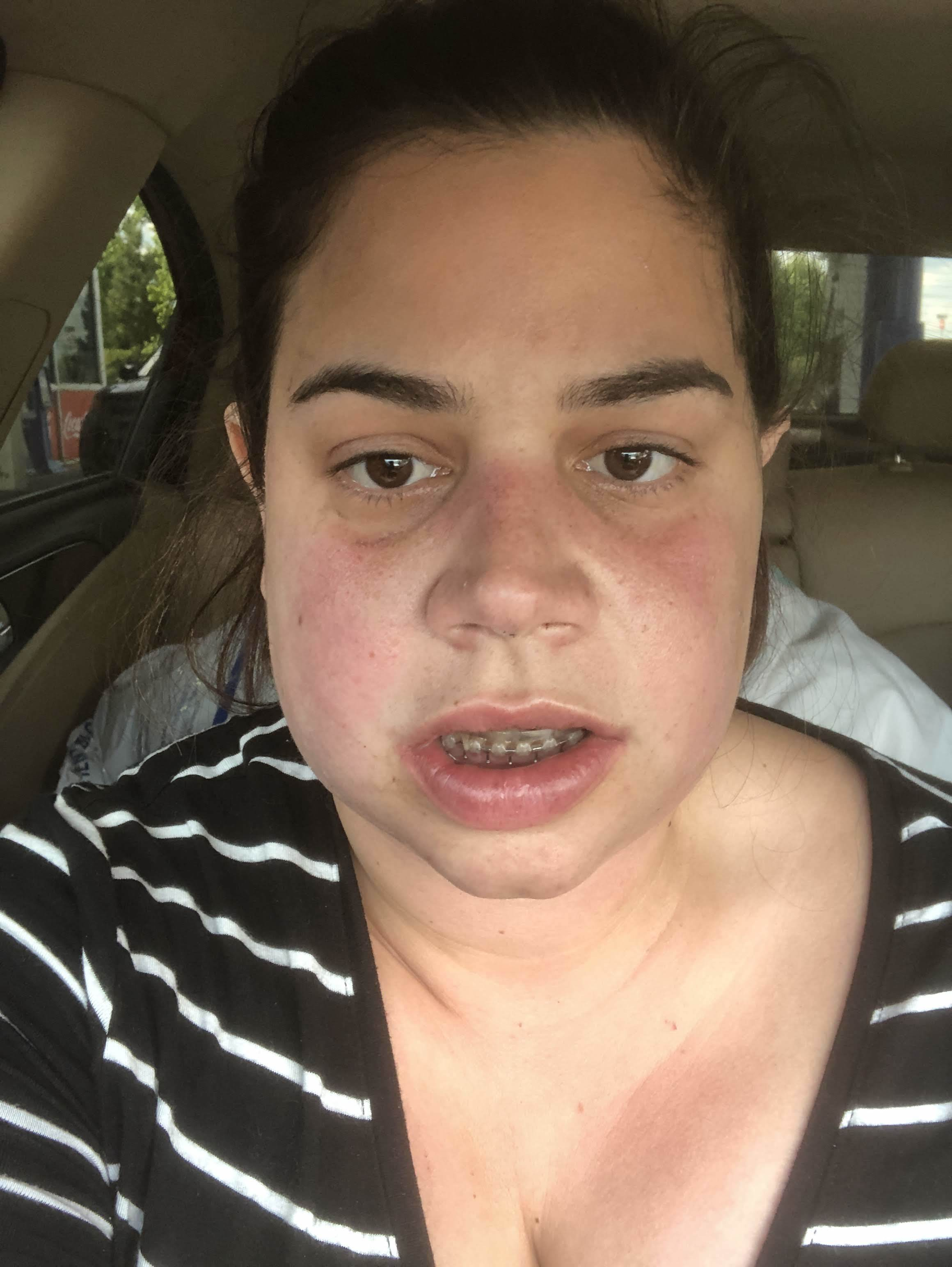 """This is what the """"edema� looked like after we left Dr. Koslin's office. It was literally like a solid rock had been placed in my left jaw."""