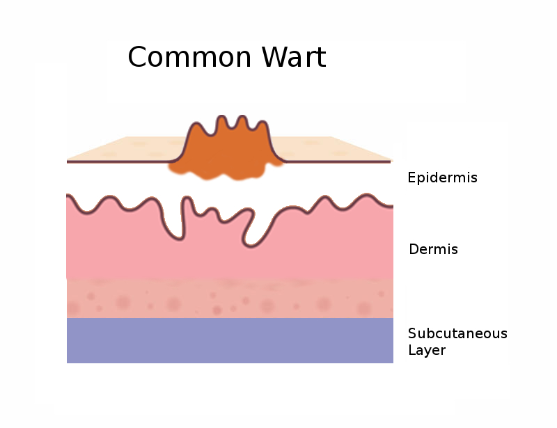 Diagram side view of the common wart
