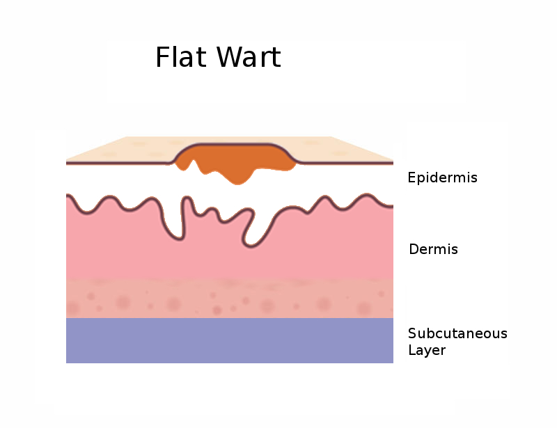 Diagram side view of a flat wart
