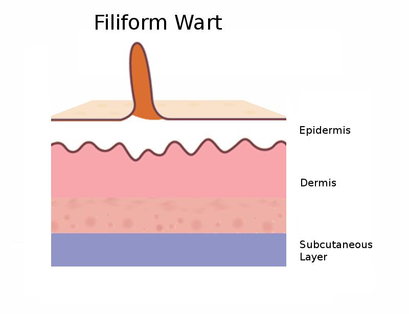 Diagram side view of a filiform wart