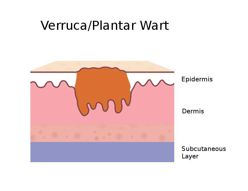 Diagram side view of a plantar wart / verruca